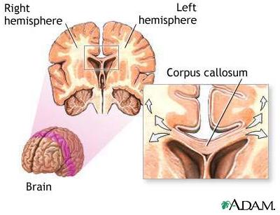Corpus Callosum | Cypress Tutoring